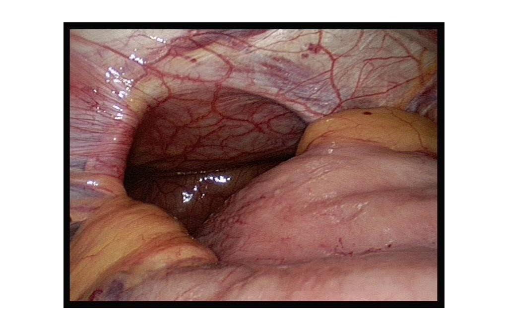 Hiatal hernia & reflux disease (acid indigestion) - Chirurgiezentrum ...